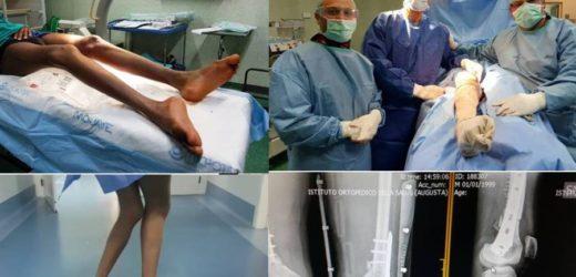 """Non camminava per una deformazione agli arti inferiori, migrante ospite a Canicattini operato  """"ritrova una nuova vita"""""""